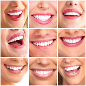 Sorriso perfetto clinic torino