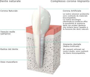 CLINIC TORINO - IMPIANTOLOGIA